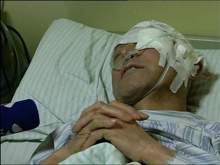 Man recovers in hospital