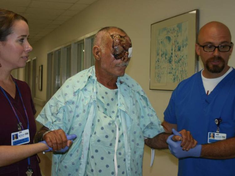 Ronald Poppo with medical staff after initial surgery. Source: Jackson Health System