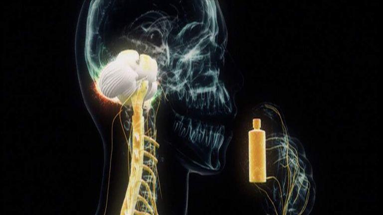 Brain Affected By LSD