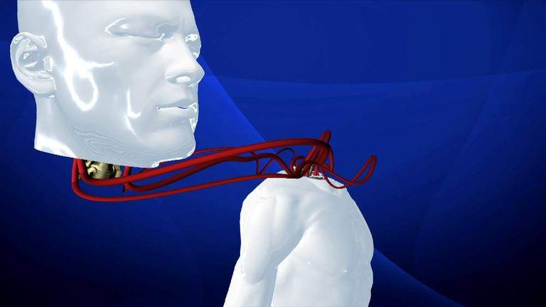 Head transplant graphic
