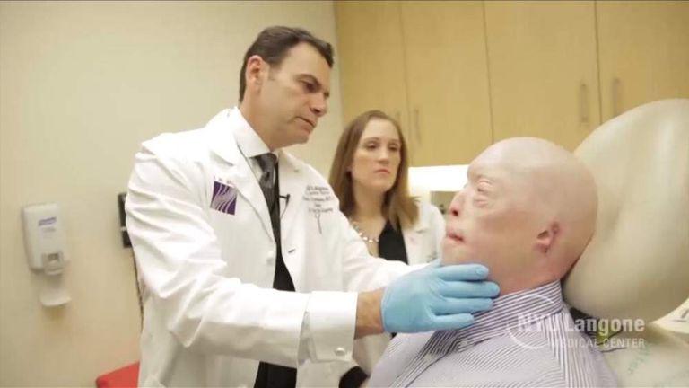 face transplant patient Patrick Hardison