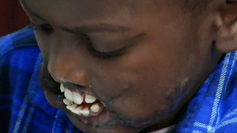 Chimp Attack Survivor To Get Rare Facial Op   World News