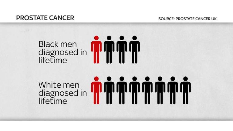 Prostate cancer: figures