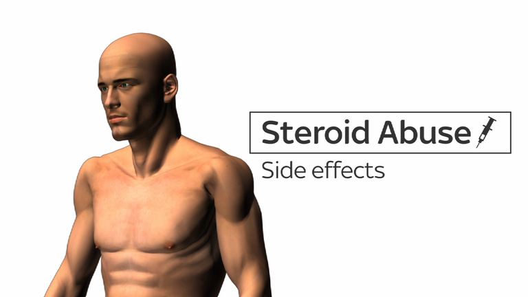 Steroid Abuse: The Side Effects
