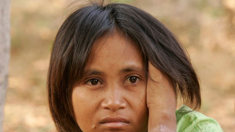 The woman was discovered scavenging and caked in dirt in Cambodia in 2007