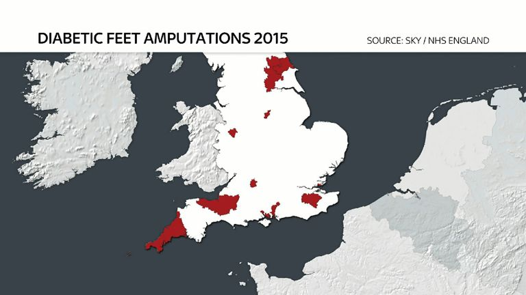 NHS trusts in the red areas are up to 10 times likelier to resort to an amputation
