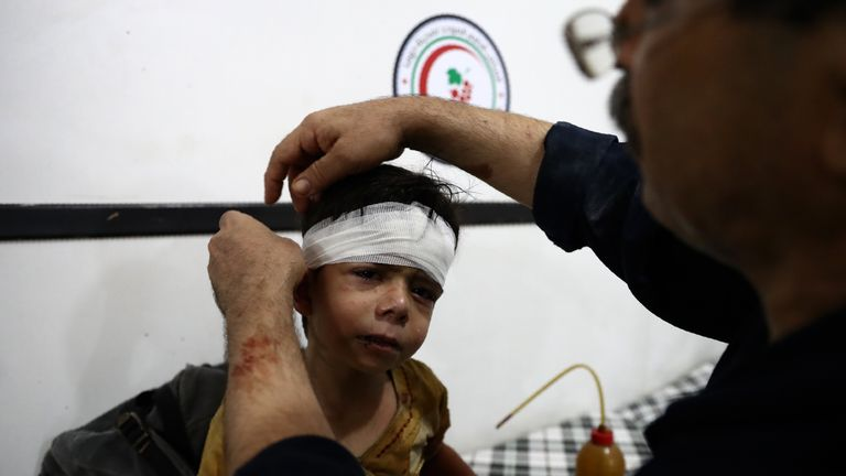 An injured boy receives treatment after an airstrike on the rebel-held town of Douma