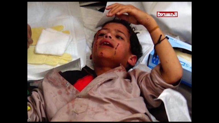 A child hurt in an airstrike on a Yemen school