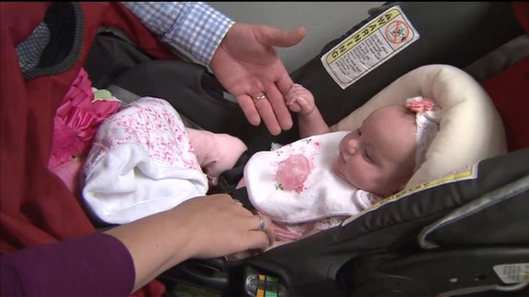 547709e4839f Baby LynLee  born twice  after tumour surgery to save her life ...