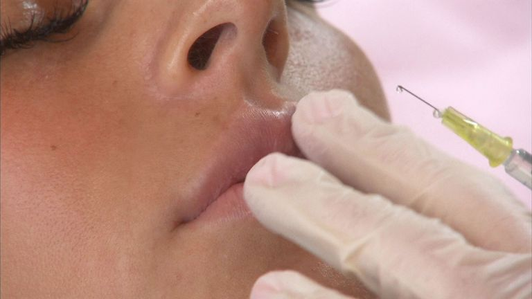The non-surgical procedure of lip filling has become increasingly popular