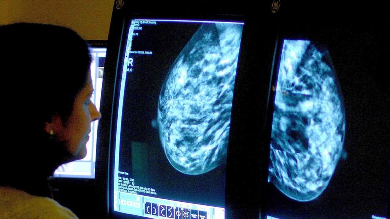 A consultant analyses a mammogram to look for signs of breast cancer