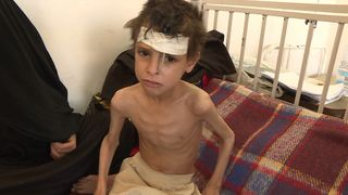 At 12 years old, Abdul weighs 11kg