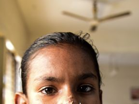 10-year-old Bangladeshi girl Sahana Khatun is believed to be the first female to contract so-called 'tree man syndrome'