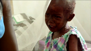 South Sudan: 270,000 children are at risk of starvation, according to UNICEF.