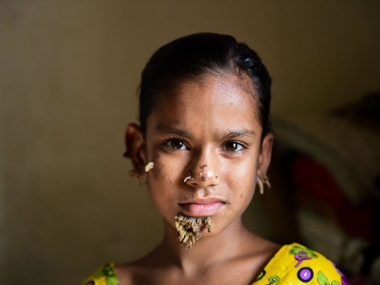 10-year-old Bangladeshi girl Sahana Khatun, could be the first female ever afflicted by so-called 'tree man syndrome'