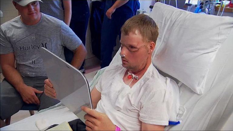 Man undergoes rare face transplant