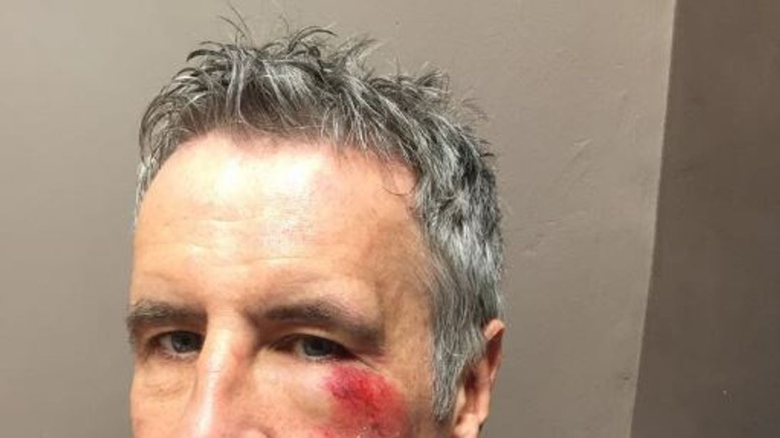 Murnaghan was hit while riding his bike wearing a hi-vis jacket in Kentish Town