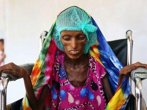 Saida Ahmad Baghili, an 18-year-old Yemeni from an impoverished coastal village on the outskirts of the rebel-held Yemeni port city of Hodeida