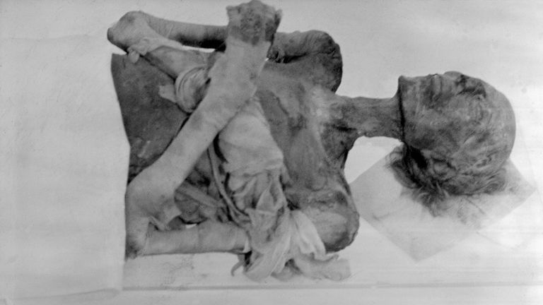 Pharaoh Ramses II's mummy seen in Paris in 1976