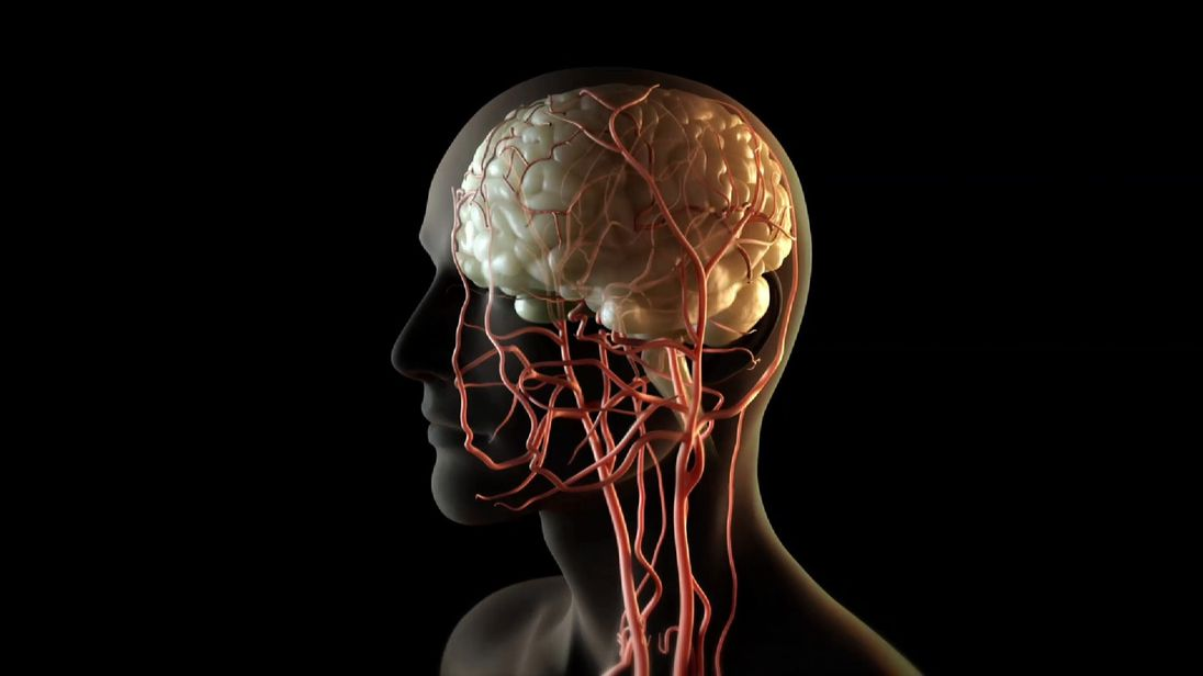 A catheter is inserted into an artery in the groin, then fed through to the site of the blood clot in the brain