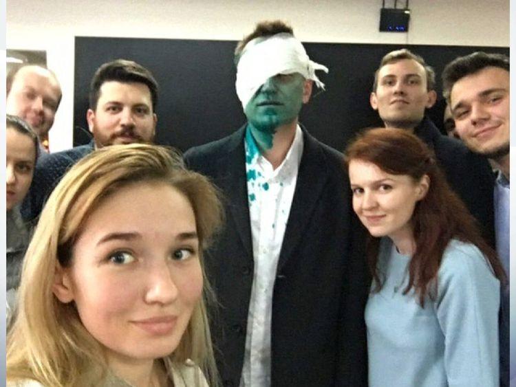 Mr Navalny suffered eye burn in the attack