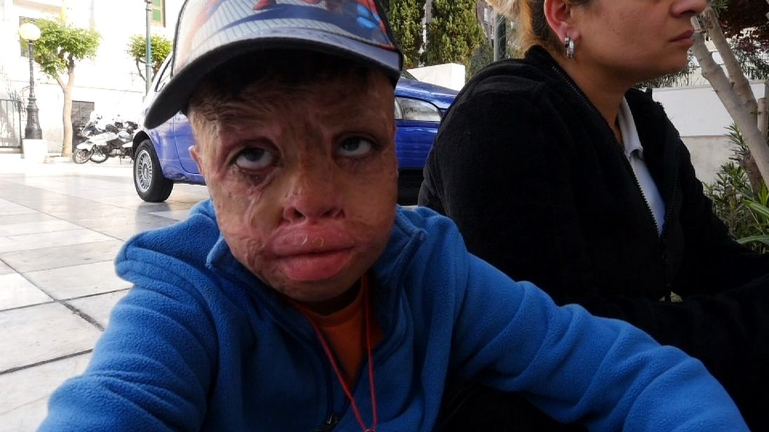 Mannan suffered third-degree burns to much of his body and needs plastic surgery