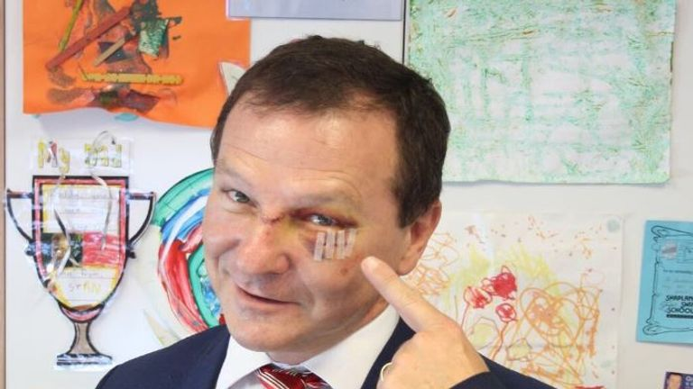 The MP was left with a black eye and three stitches Pic: Stan and Leo Perrett