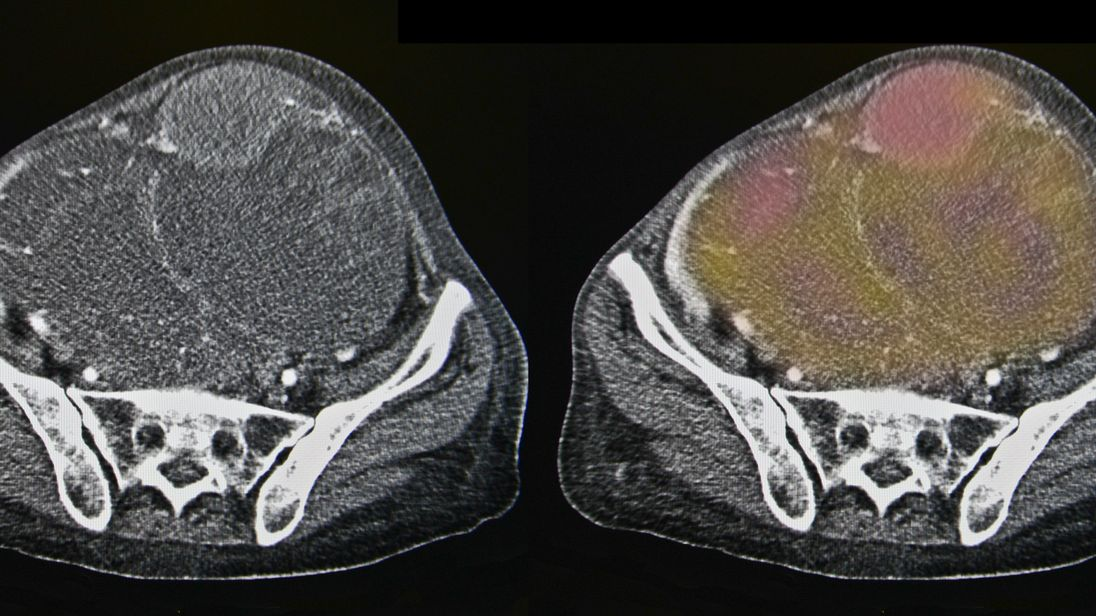 An ovarian cancer scan. File pic