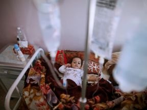 A girl with cholera receives treatment through a drip in a centre in Sanaa, Yemen