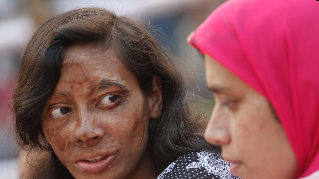 victims of an acid attack A woman has been injured after allegedly being hit by a noxious substance in  brixton the victim was reportedly hit by a substance outside of.