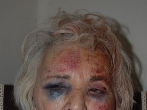 Catherine Smith of Lambeth, London, who was assaulted by a woman in July 2017 - met police image