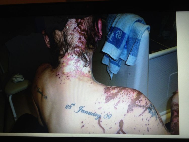 Tara's back, neck and head were burned in the attack Pic: Tara Quigley