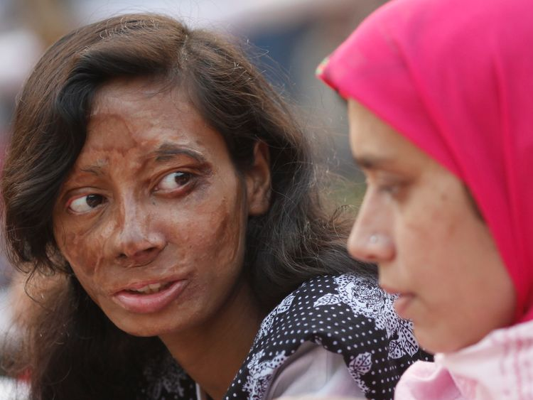 An acid attack survivor at a protest over violence against women in Bangladesh