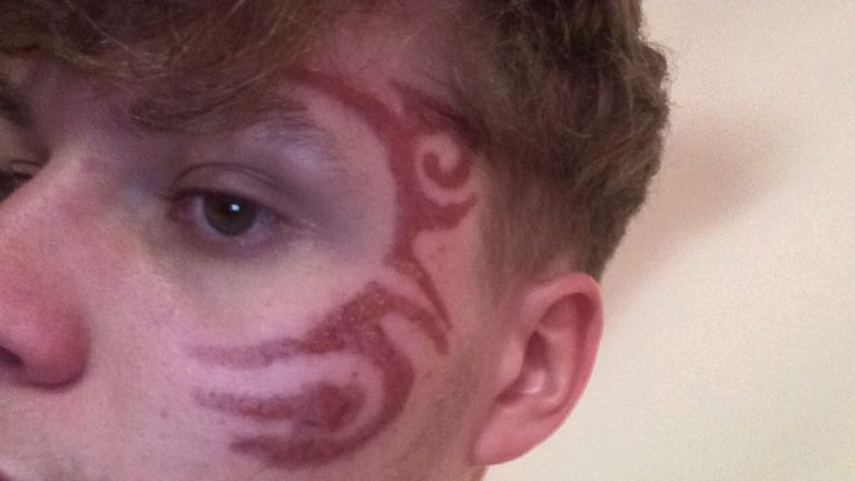 James has been left with scars after his black henna tattoo became infected on a lads' holiday