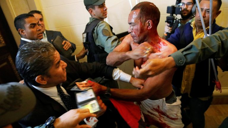 An injured government supporter tries to leave the building after he and a group of fellow government supporters burst into Venezuela's opposition-controlled National Assembly