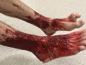 Sam's feet were covered in blood when he left the sea. Pic: Jarrod Kanizay