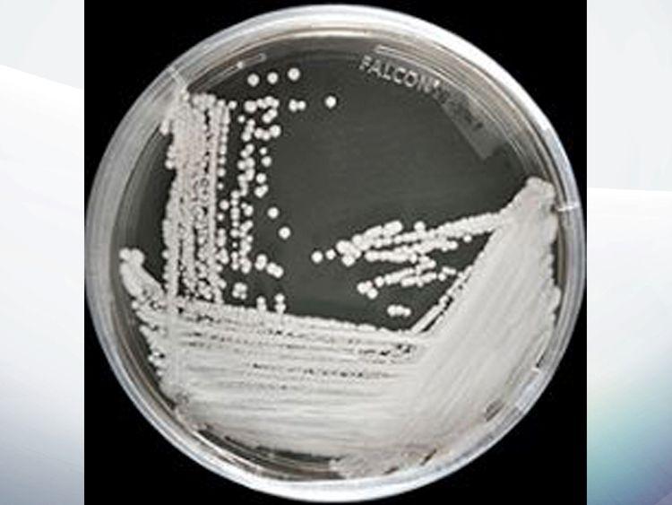 A strain of Candida auris cultured in a petri dish