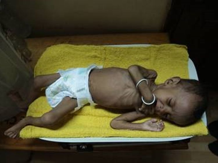 10-month-old Arwa is suffering from severe malnutrition. Pic: Save the Children