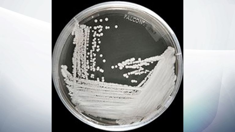 A strain of Candida auris cultured in a petri dish