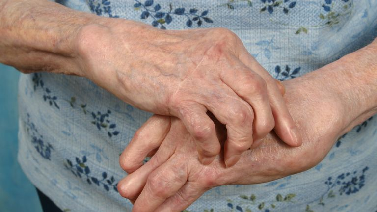 Campaigners warn many suffer in silence from the condition
