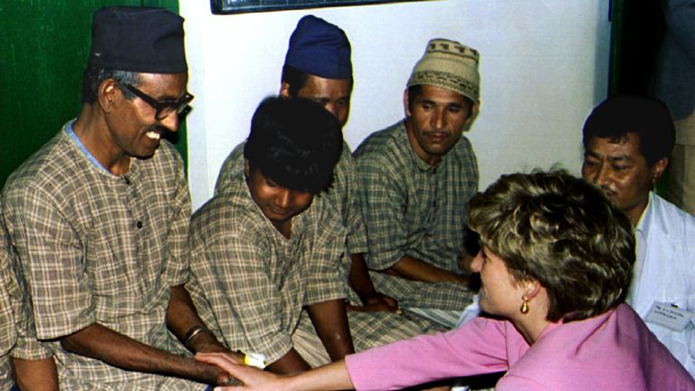 Diana touches a leprosy sufferer during a visit to Nepal