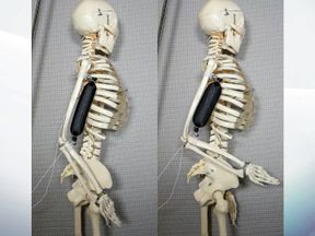 Artificial muscle in use as a bicep lifts a skeleton's arm to a 90 degree position. Pic: Aslan Miriyev/Columbia Engineering