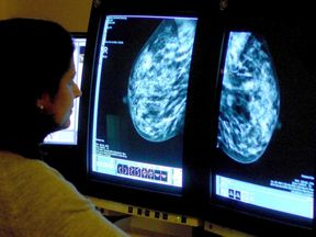 File photo of a consultant analysing a mammogram