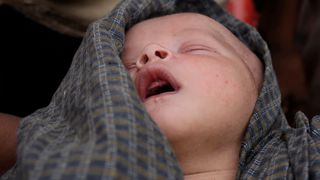 This two-day old Rohingya baby is desperately ill