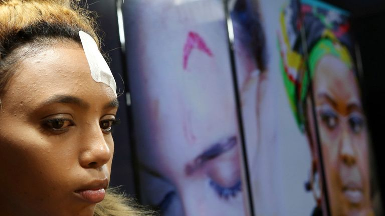 South African model Gabriella Engels, at a news conference after an alleged assault by Zimbabwe First Lady Grace Mugabe