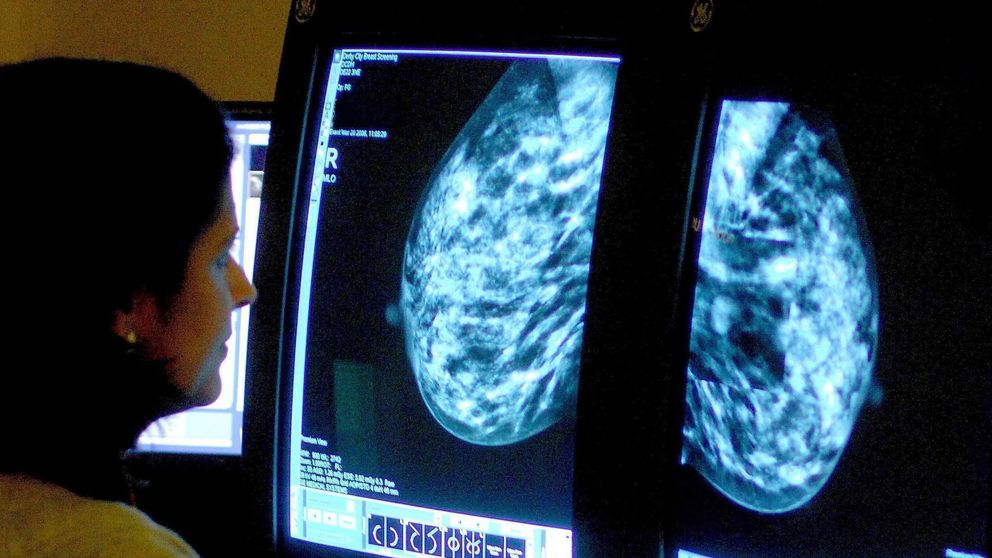 Shropshire health bosses investigating breast cancer screening IT error