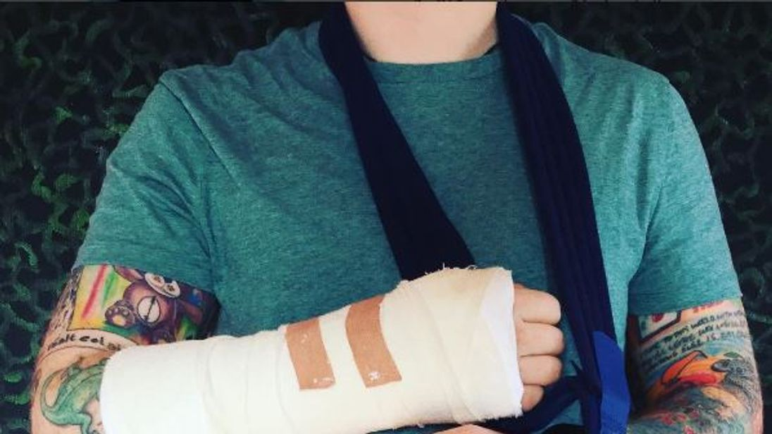 Ed Sheeran's Instagram post shows his two fractured arms. Photo: Ed Sheeran/Instagram