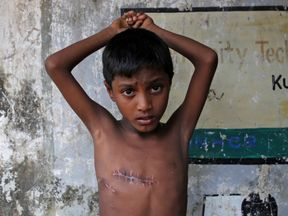 Mohammed Shoaib, 7, was shot in the chest in Myanmar