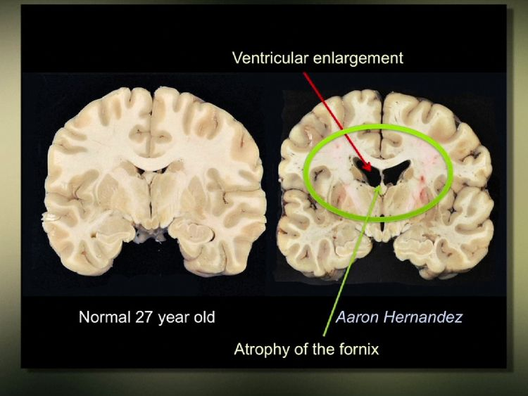 A normal 27 year-old's brain alongside what researchers found in Aaron Hernandez's brain. Pic: Boston University CTE Center