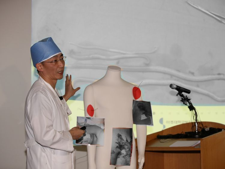 A surgeon Lee Cook-jong gives a briefing during a news conference at a hospital in Suwon, South Korea, November 15, 2017